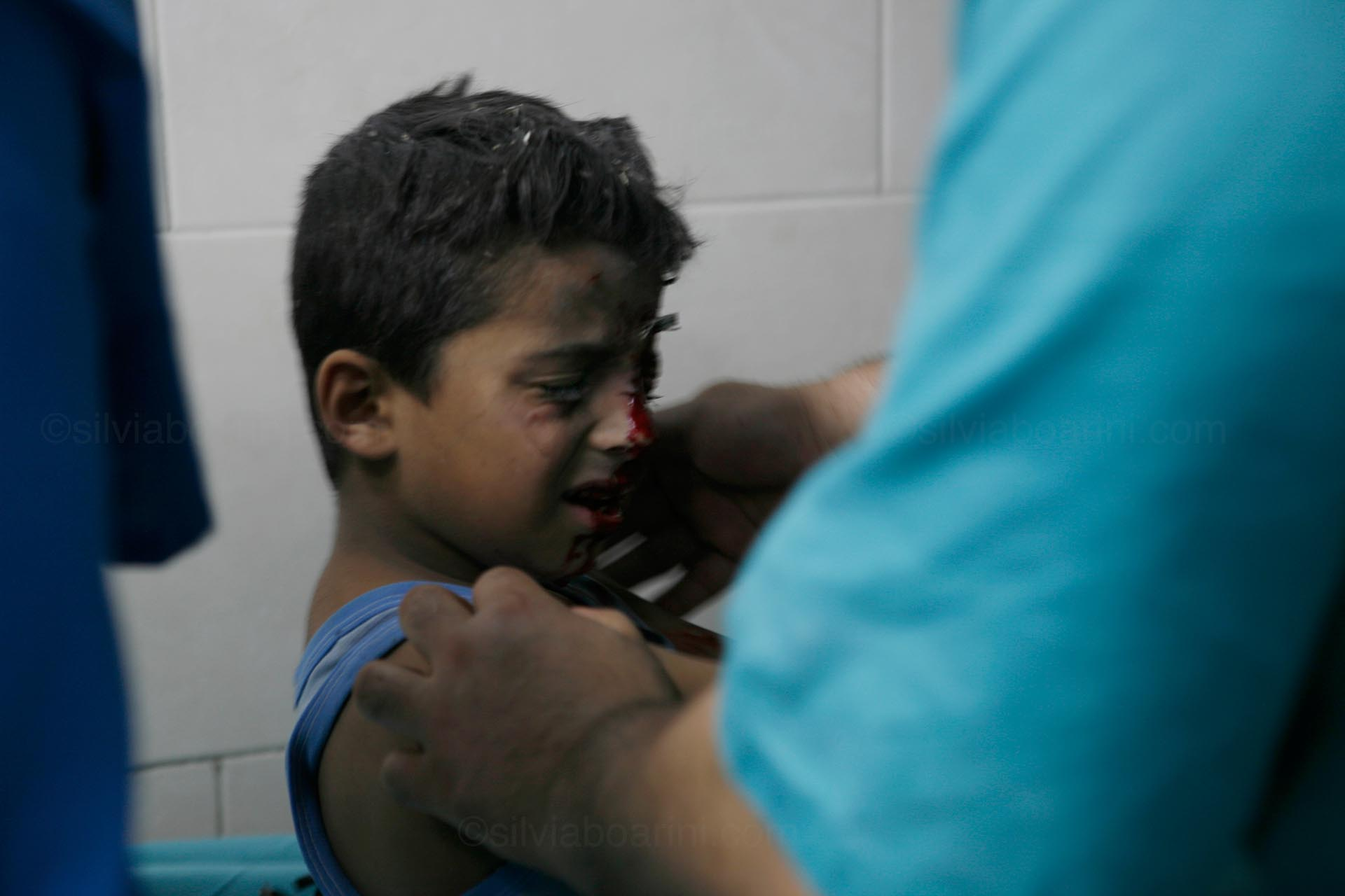 An injured child is brought in to Shifa hospital following Israeli shelling. Gaza, July 2014